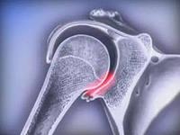 Травма плечевого сустава – несколько недель на восстановление