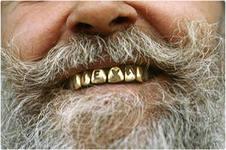 100 долларов за лечение одного зуба