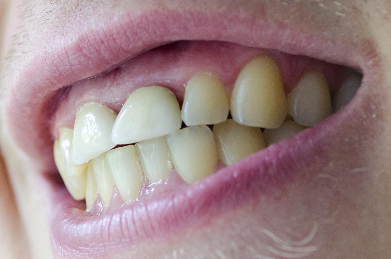 Коронки цвета зуба