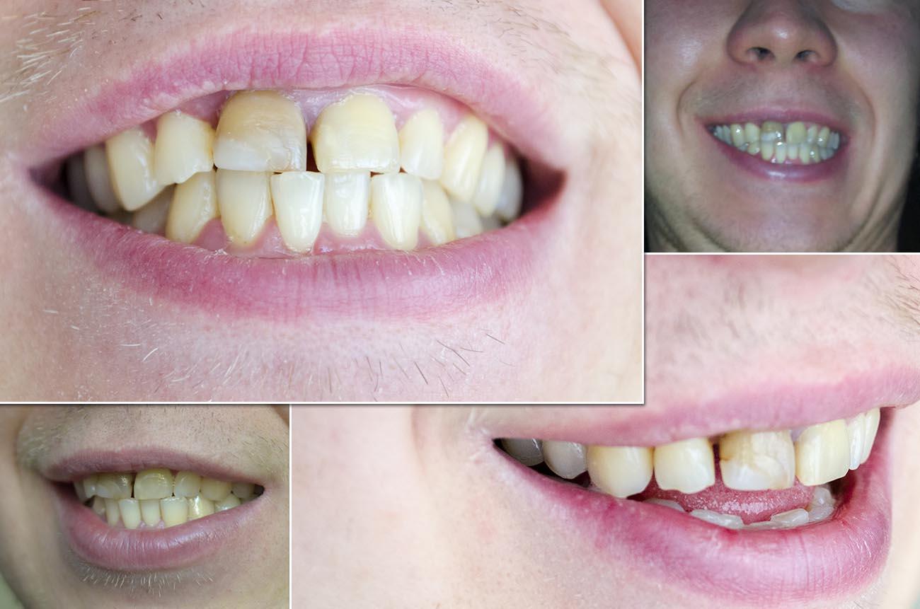 Коронки на передние зубы что делать