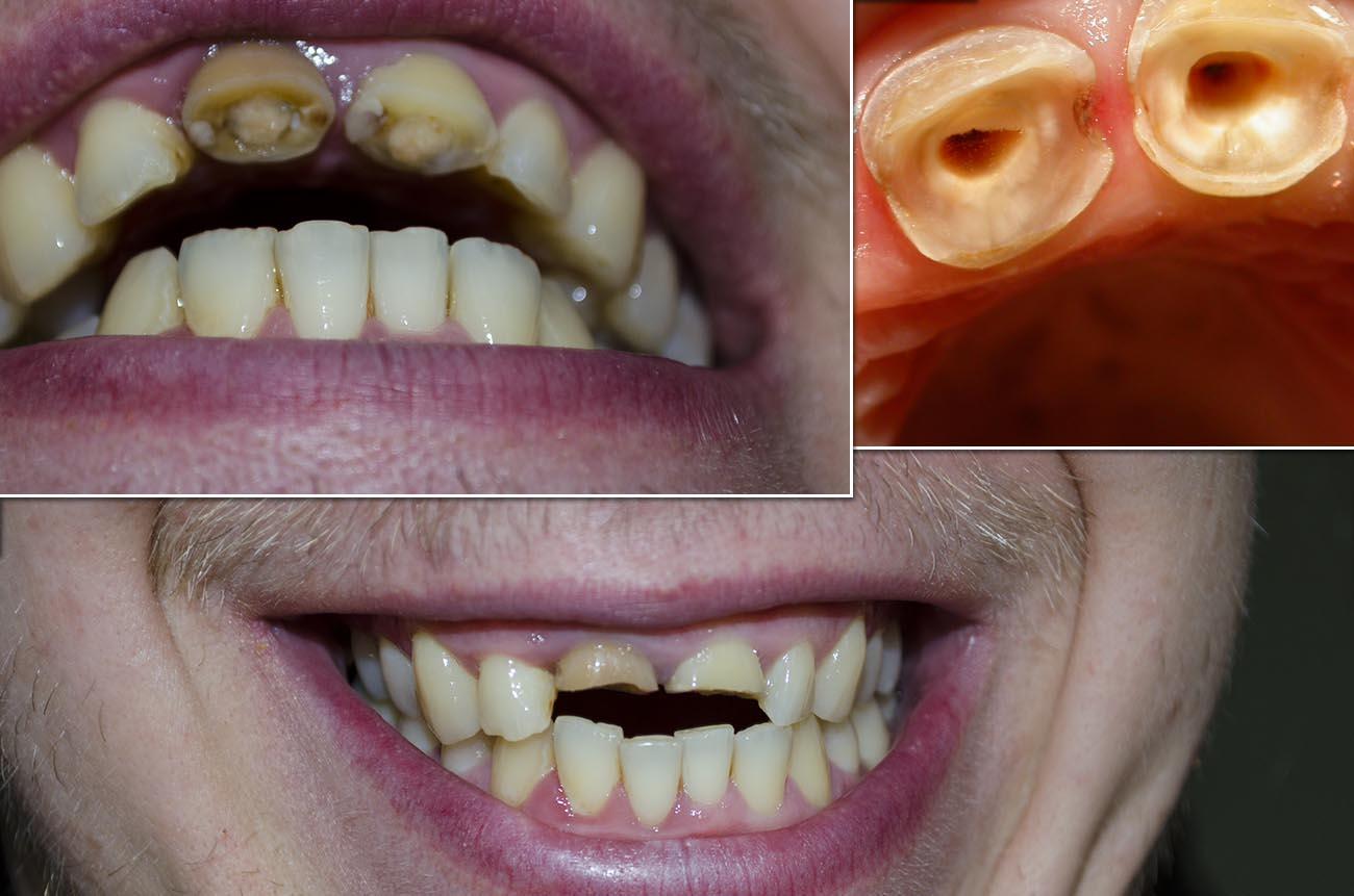 Что делать если передние две зубы большие