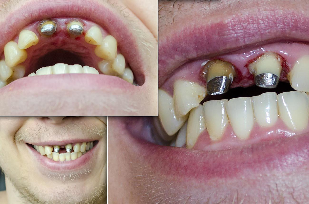 коронки на зубы передние фото