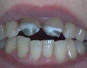 Зубные вкладки под коронку